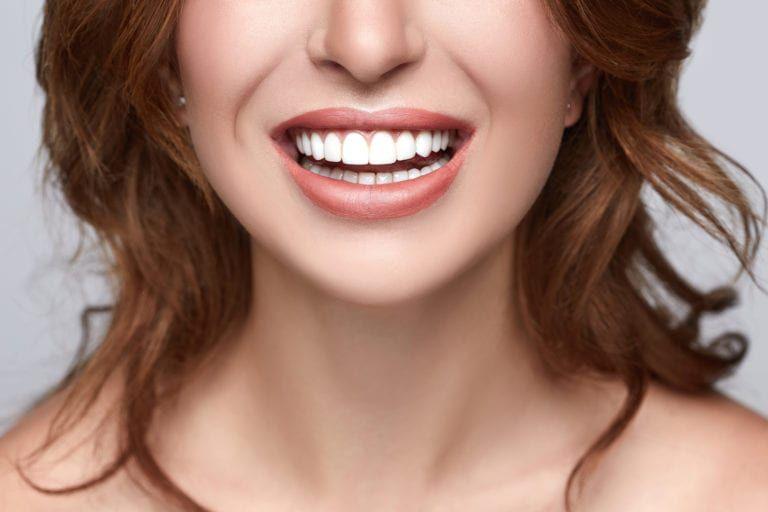 mccartney dental teeth whitening