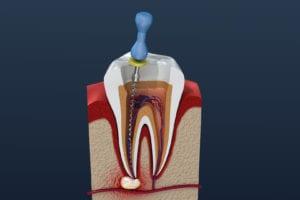 mccartney dental root canal