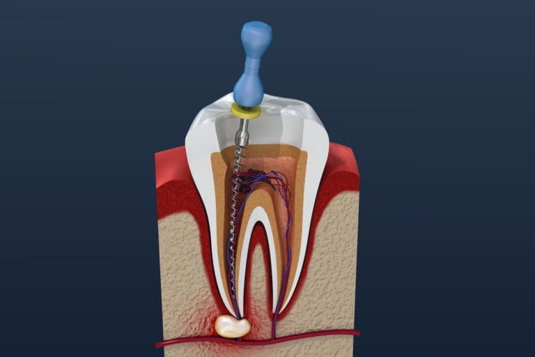 mccartney dental root canal