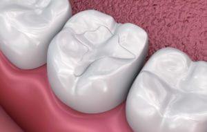 mccartney dental fillings