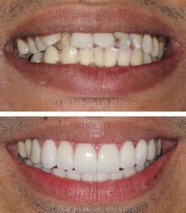 mccartney dental veneers