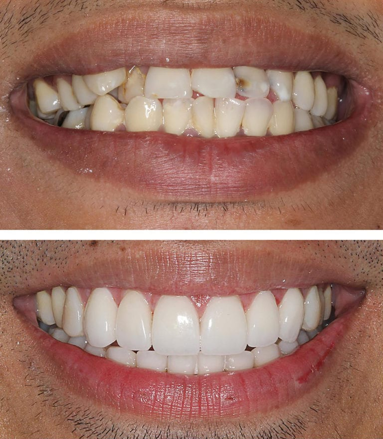 mccartney dental veneers