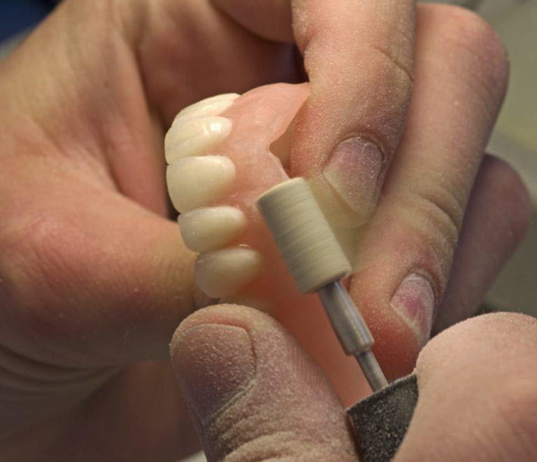 Doctor doing Denture Repair