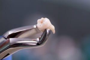 mccartney dental teeth extraction
