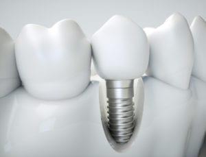 mccartney dental florida