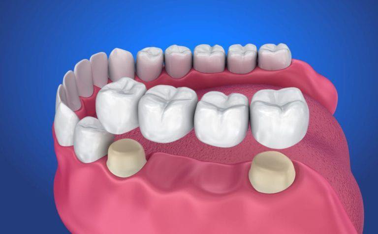 dental bridges image