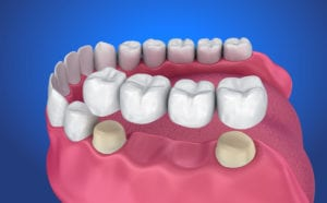 mccartney dental bridges
