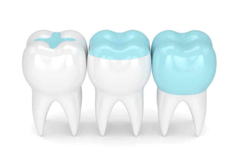 Image showing dental restorations of Inlays and onlays