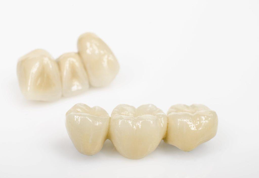 Dental bridges against a white background
