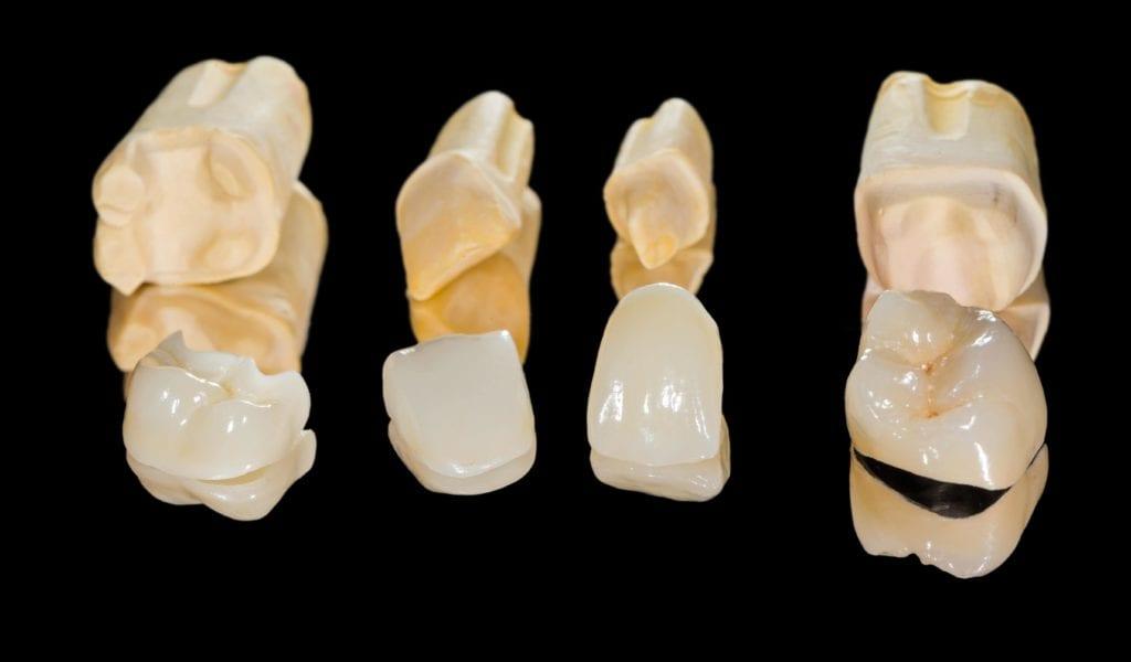 Dental restorations against a black background