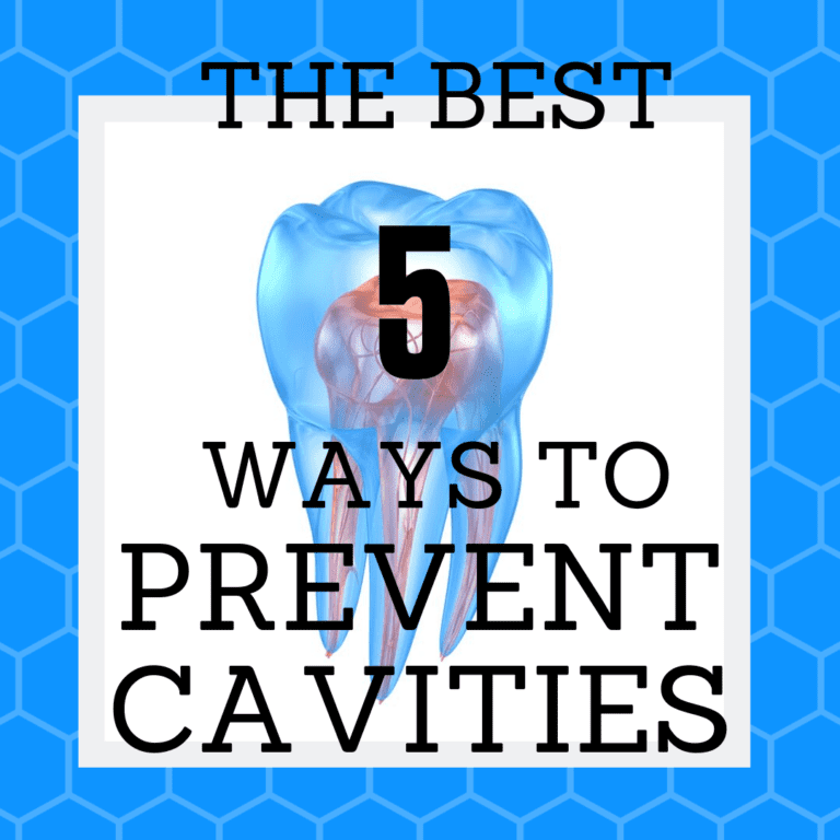 "Title Banner for ""the best 5 ways to prevent cavities"""