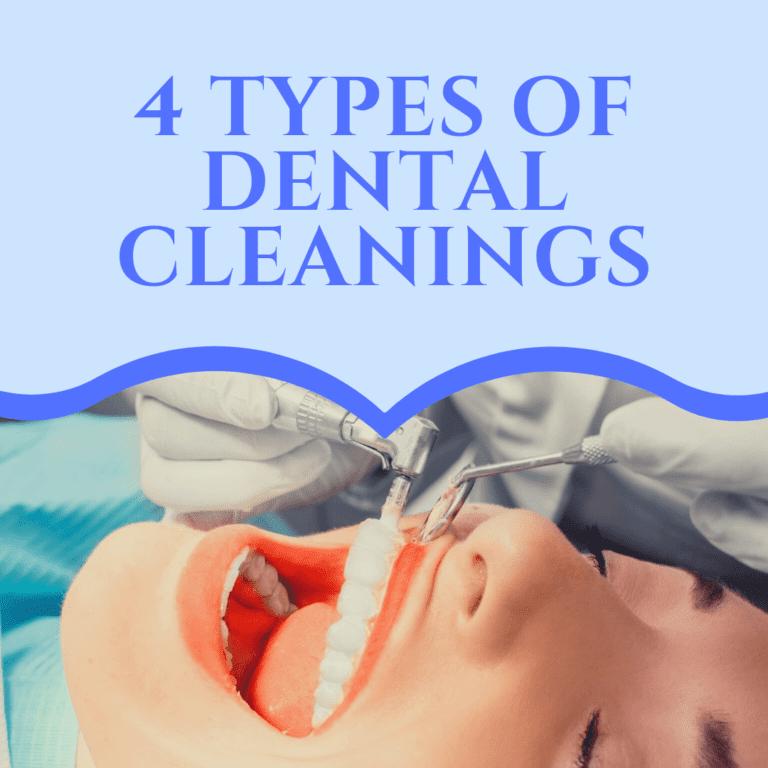 4 types of dental cleanings