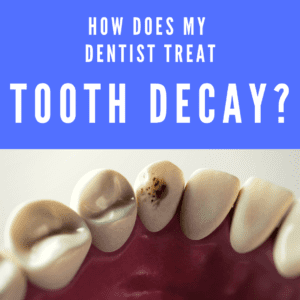 How Does my Dentist Treat Tooth Decay