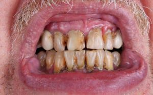 Man affected by periodontal disease
